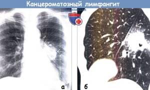 Канцероматозный лимфангит легких