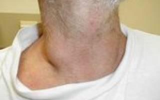 Лимфаденопатия мтс