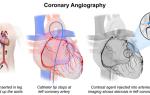 Коронарография при инфаркте